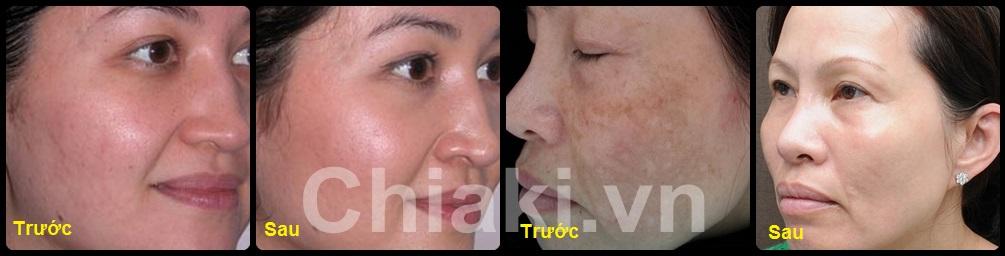 Bột Neocell Collagen Beauty Infusion 5000mg Hương Mạn Việt Quất Cranberry 1