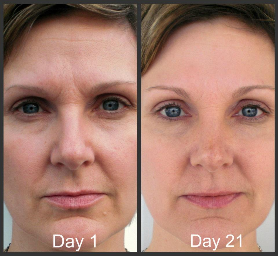 does marine collagen work