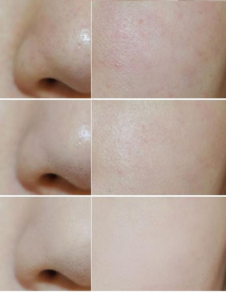 Phấn rôm Shiseido Nhật Bản giúp làn da bạn mịn màng, trắng sáng, kiềm dầu tốt