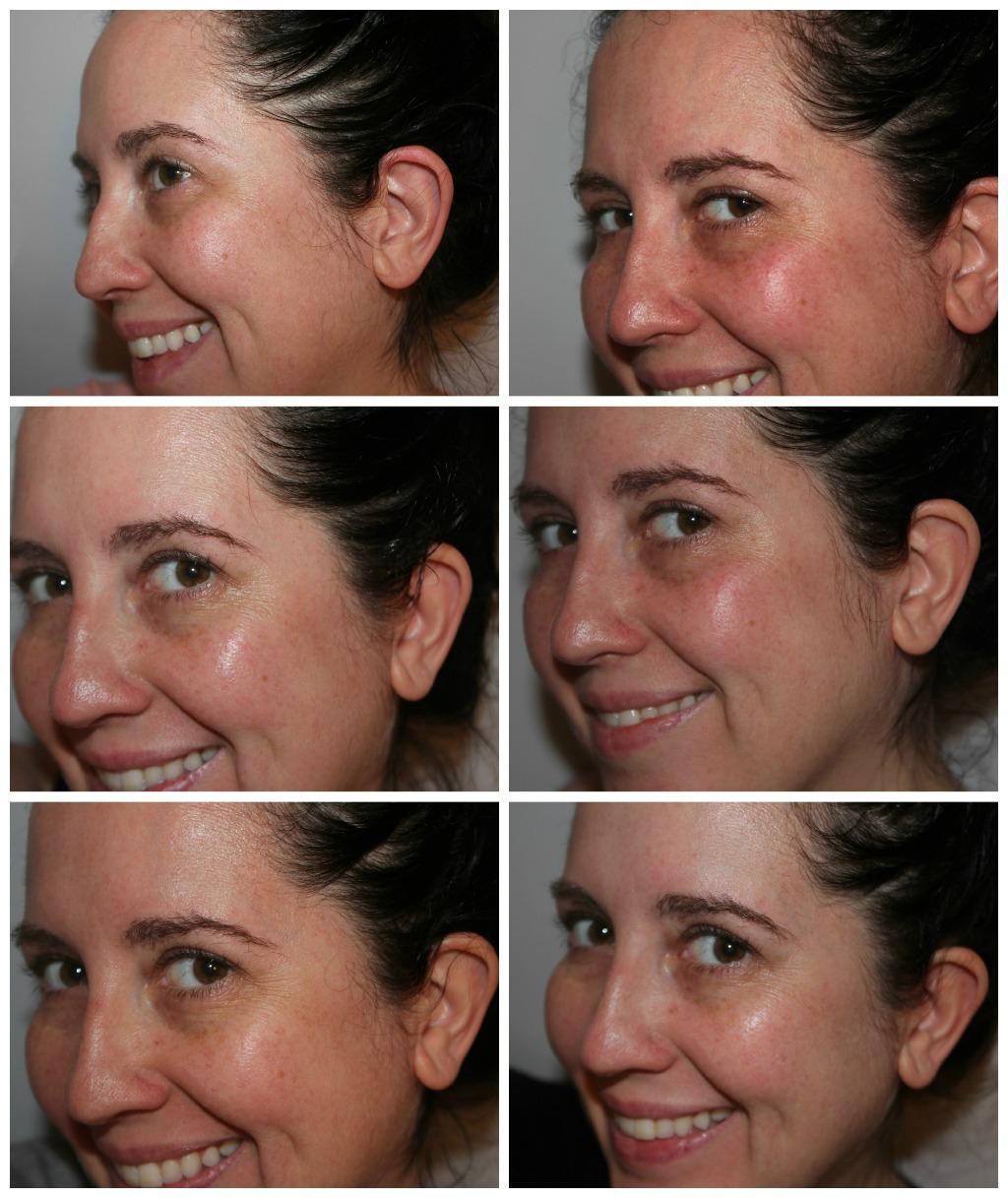 Sự thay đổi đáng kinh ngạc của làn da chỉ sau một thời gian ngắn sử dụng