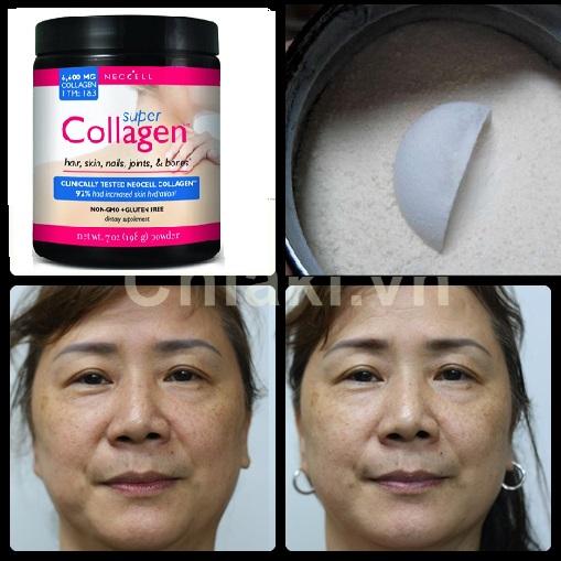 Super Collagen Neocell dạng bột 6600 mg chống chảy xệ, lão hóa da
