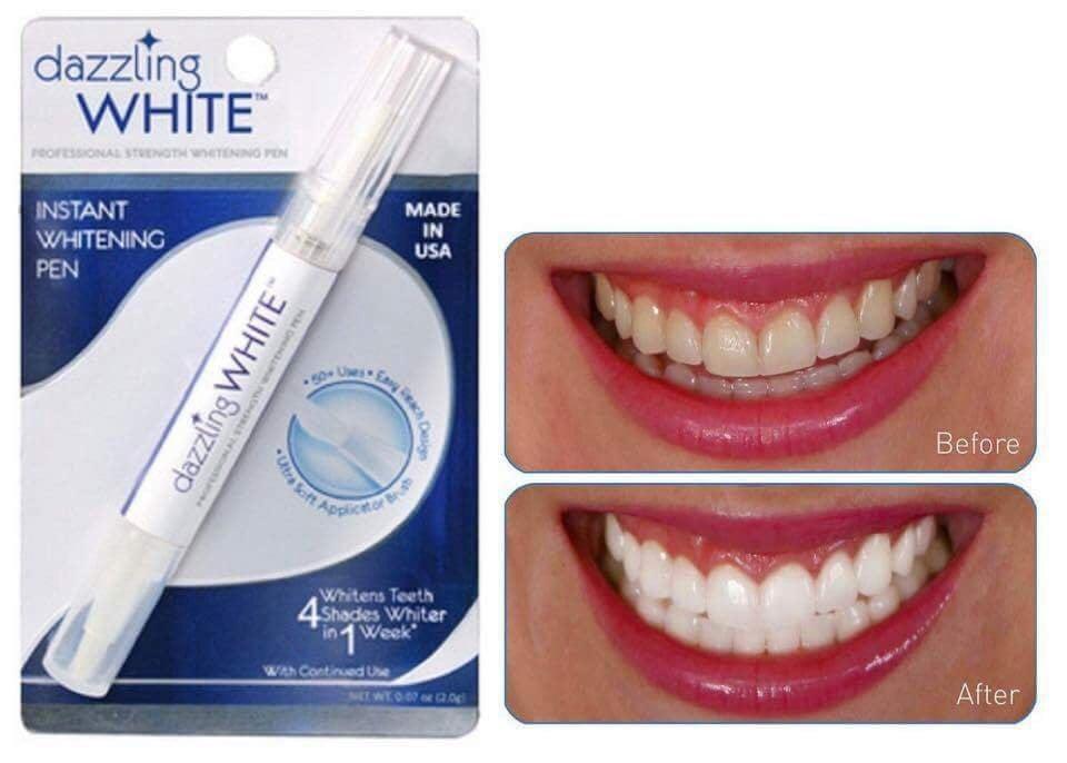 Bút tẩy trắng răng Dazzling White có khả năng làm trắng răng 4 cấp độ sau 1 tuần