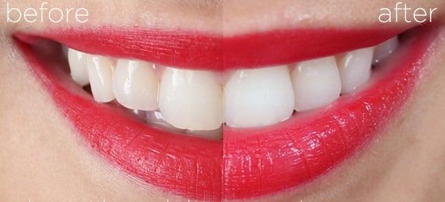 Cơ chế làm trắng răng của Crest 3D White Glamorous White là tạo lớp bọt dày bao phủ hàm răng trong quá trình đánh răng