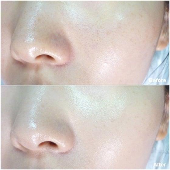 Serum Collagen tươi Teana C1- làm chậm lão hóa, hỗ trợ điều trị nám và tàn nhang