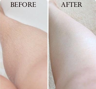 Kem tẩy lông Velvet mang lại hiệu quả và đảm bảo an toàn cho làn da