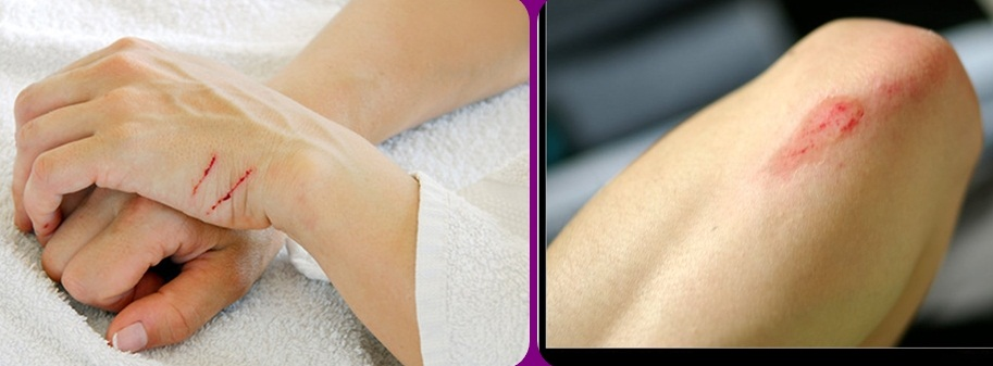 Kem mỡ điều trị vết thương Neosporin có thể sử dụng trên da nhạy cảm