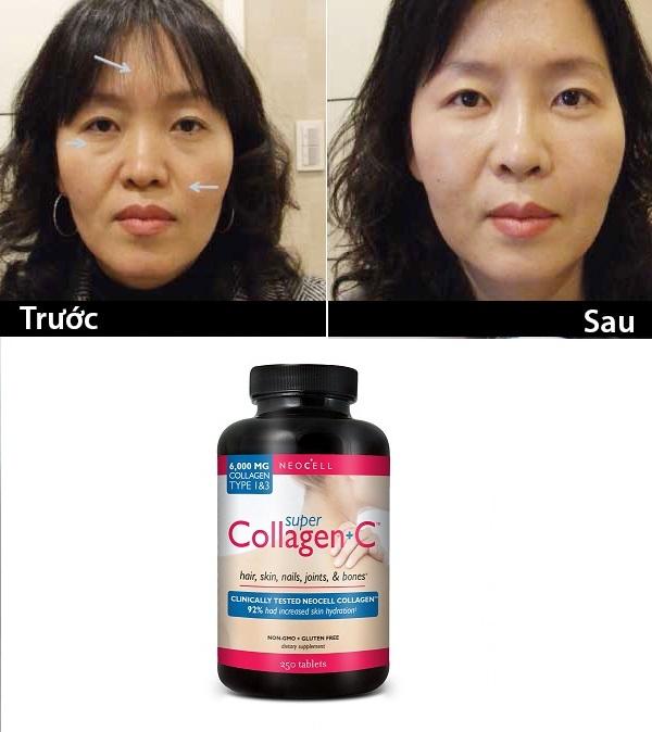 Hiệu quả sau khi sử dụng Super Collagen c 250 viên