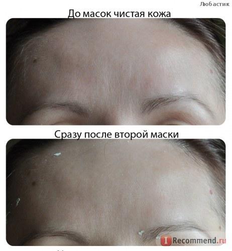 Collagen tươi Teana D6 của Nga chống chảy xệ cho phụ nữ từ tuổi 30 trở lên