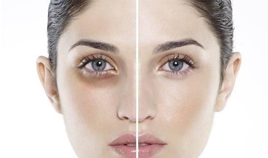 Kem trị thâm quầng mắt Vanilyx giúp loại bỏ các vết thâm quầng, bọng mắt do các nguyên nhân khác nhau gây ra