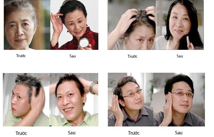 Lược nhuộm tóc thông minh Tengya phủ đen thế hệ mới  2