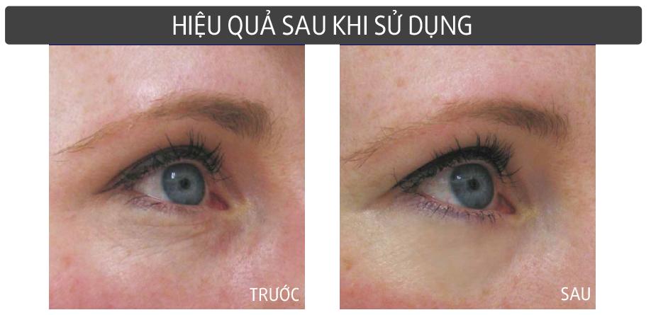 Sử dụng kem dưỡng mắt Shiseido mỗi ngày, bạn sẽ thấy vùng da mắt ẩm mịn và mượt mà hơn
