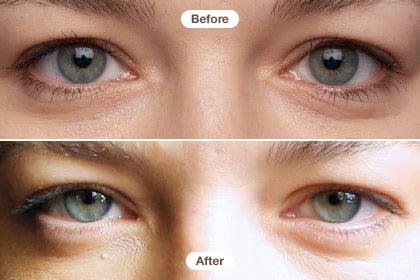 Kem mắt RoC giải quyết các vấn đề nhăn mắt và quầng thâm, mang lại hiệu quả giảm quầng thâm cùng bọng sau khoảng 1 tuần, còn nếp nhăn là sau khoảng 3 tháng