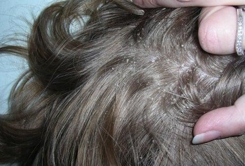 Chiết xuất cây Hermo & chất Climbazole có trong thành phần dầu gội trị gàu Orzen sẽ loại bỏ toàn bộ gàu bám trên da đầu