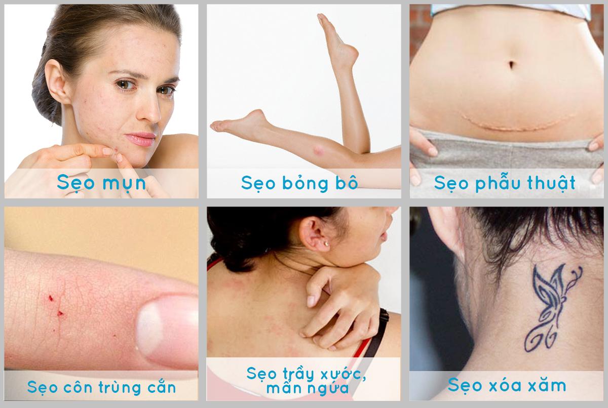 Kem trị sẹo Scar Rejuvasil chuyên trị sẹo lồi, sẹo phẫu thuật, sẹo mổ đẻ, vết rạn da