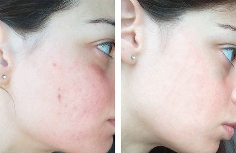 Lotion Meishoku Bigansui Medicated Skin Trị Mụn