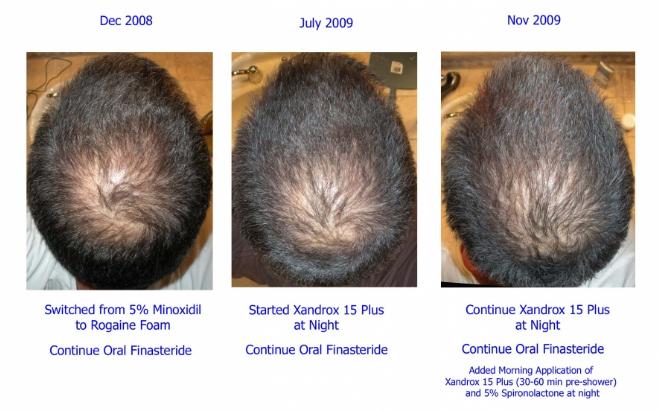 Trước và sau khi sử dụng thuốc mọc tóc Minoxidil 5% Men's Rogaine Foam