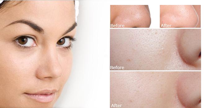 Serum se khít lỗ chân lông Estee Lauder Idealist Pore Minimizing giúp se khít lỗ chân lông gấp 3 lần sau khi sử dụng