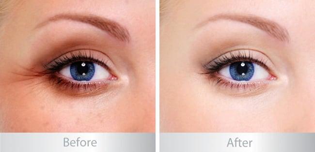 Lăn xóa nhăn vùng mắt Eveline Biohyaluron 4D ngay lập tức làm mát da, dưỡng ẩm sâu suốt 24 giờ, thúc đẩy lưu thông mạch máu