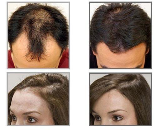 Hình ảnh thực tế của khách hàng trước và sau khi sử dụng Vitacost Biotin 10000mcg