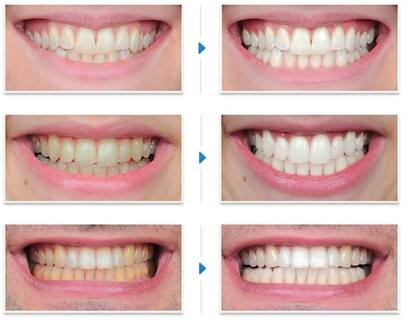 Gel tẩy trắng răng 7 ngày Hàn Quốc DR.Haiian chính hãng