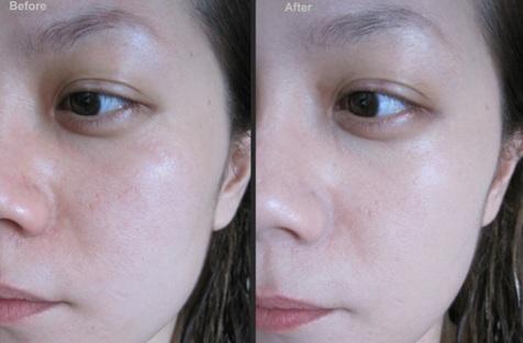 Collagen Biovea tăng độ đàn hồi cho da mang lại làn da căng mịn, đầy sức sống