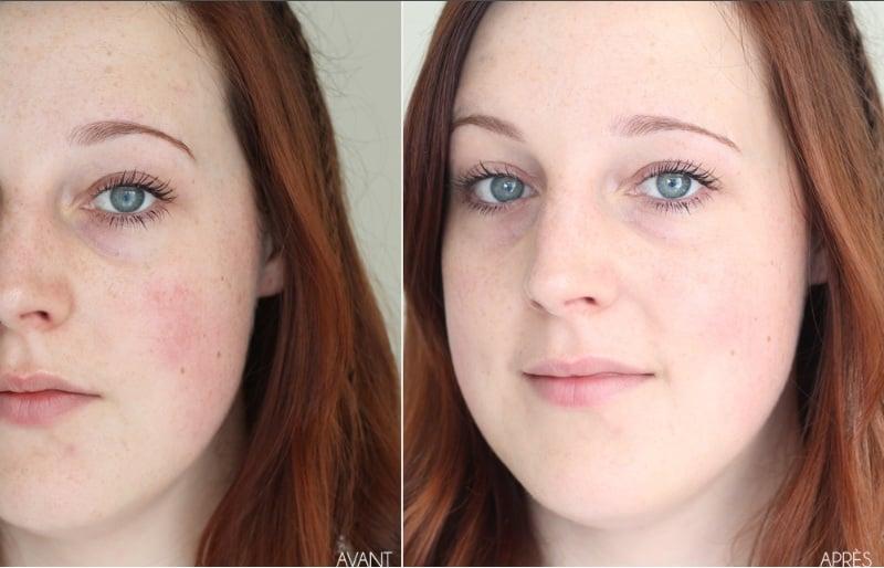 Trước và sau khi sử dụng serum trị nám Caudalie