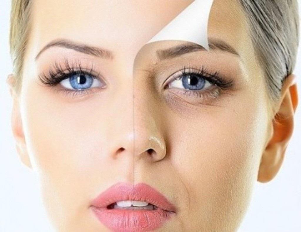 Thành phần chính Hyaluronic Acid giúp mờ nhăn, trẻ hóa làn da