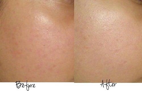 Advanced Night Repair  trả lại cho bạn một làn da tươi sáng, khỏe khoắn và mềm mịn.
