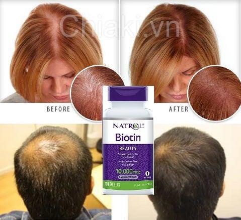 Viên uống mọc tóc Natrol Biotin 10000mcg có tốt không?