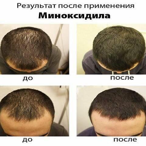 Xịt Hỗ Trợ Mọc Tóc, Hỗ Trợ Trị Hói Eksiderm Của Nga (Miễn Phí Vận Chuyển)