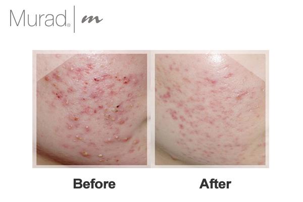 Gel giảm mụn cấp tốc Murad Blemish Spot Treatment giúp tiêu diệt vi khuẩn và làm khô mụn nhanh chóng