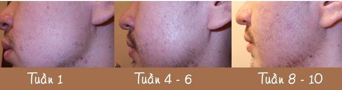Kích thích mọc râu Nioxin Intensive Therapy Hair Booster mang tính chất trị liệu chuyên sâu lỗ chân lông
