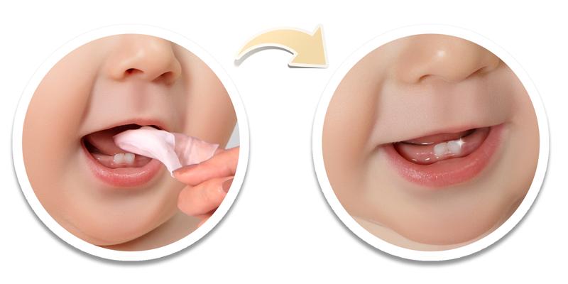 Cách sử dụng gạc BaBy Bro vệ sinh răng miệng cho bé