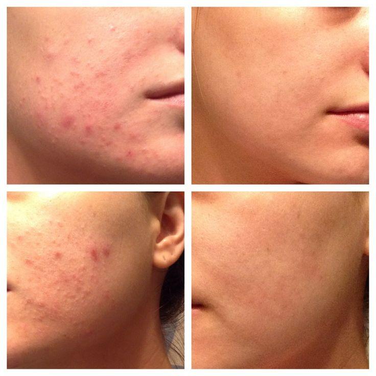 Sản phẩm được phát triển bởi các bác sỹ da liễu được chứng minh là giảm tới 99% vi khuẩn có hại trên da