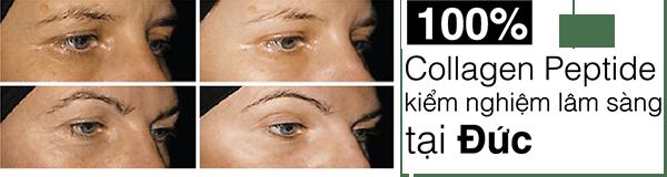 Nước Collagen Adiva Gold giúp làm mờ nếp nhăn, làm chậm quá trình lão hóa da hiệu quả