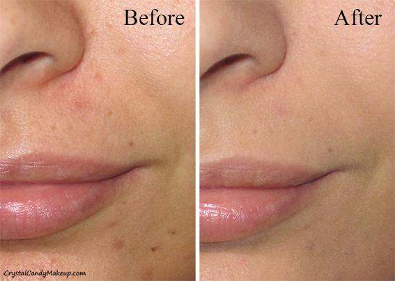 Effaclar K+ giúp giảm tình trạng mụn đầu đen, da sần sùi hiệu quả