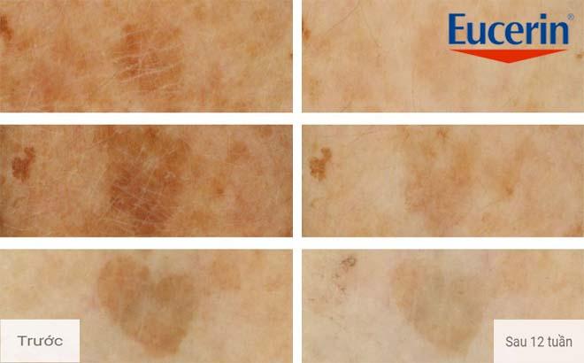 Serum Eucerin White Therapy trắng da, giảm thâm nám 2