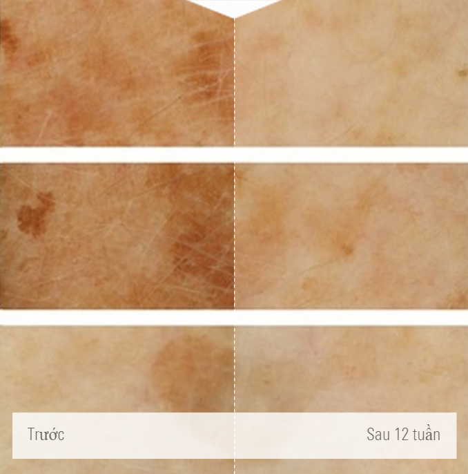 Làn da trước và sau khi sử dụng sữa rửa mặt Eucerin