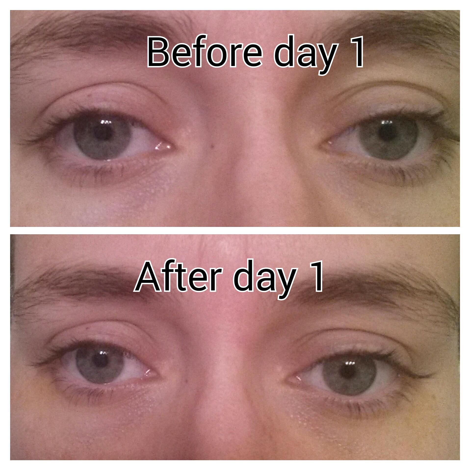 Công thức có chứa Matrixyl 3000 giúp làm đầy các nếp nhăn, trẻ hóa vùng da quanh mắt