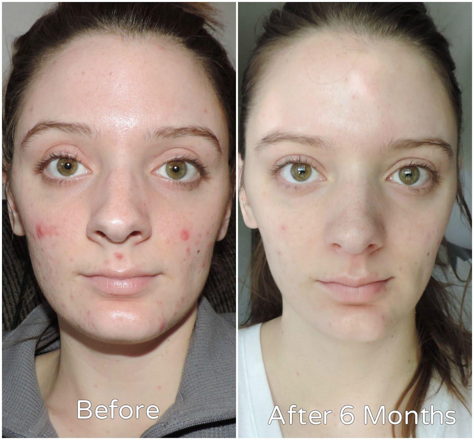 Thành phần vitamin C với nồng độ cao hỗ trợ sáng da, mờ thâm hiệu quả