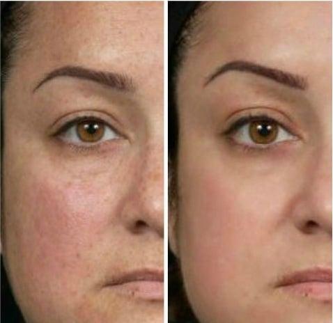 Công thức có chứa Alpha Arbutin 2% giúp dưỡng sáng da, mờ thâm nám hiệu quả