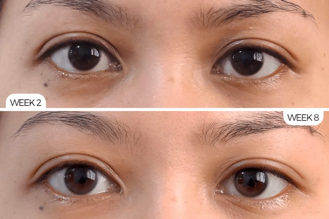 Tình trạng thâm quầng mắt giảm rõ rệt sau một thời gian sử dụng sản phẩm
