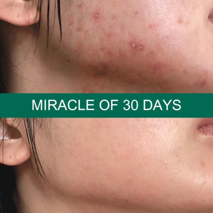 Serum Trị Mụn AHA BHA PHA 30 Days Miracle Some By Mi