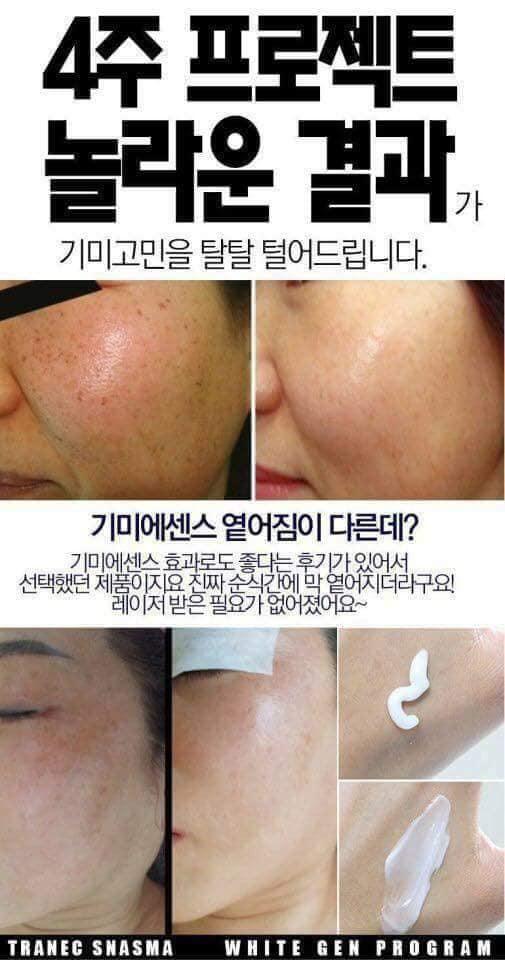 Tinh Chất Trị Nám Tranex Toning 9 Essence Hàn Quốc 2