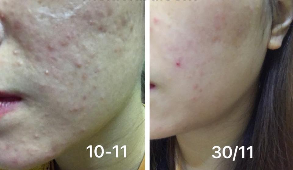 Lotion Meishoku Bigansui Medicated Skin trị mụn 3