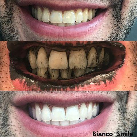 Viên Trắng Răng Lush Boom Toothy Tabs 2