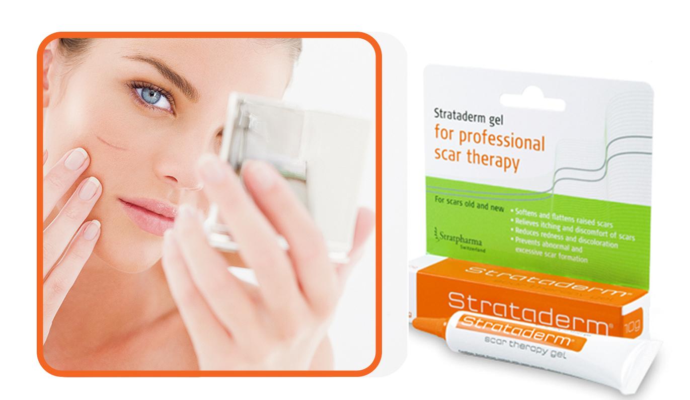 Strataderm -  Kem hỗ trợ cải thiện sẹo lồi của Thụy Sĩ 1