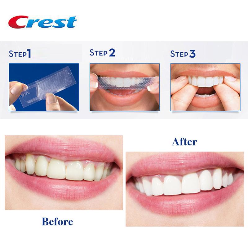 Hướng dẫn sử dụng miếng dán trắng răng Crest 3D White Professional Effects