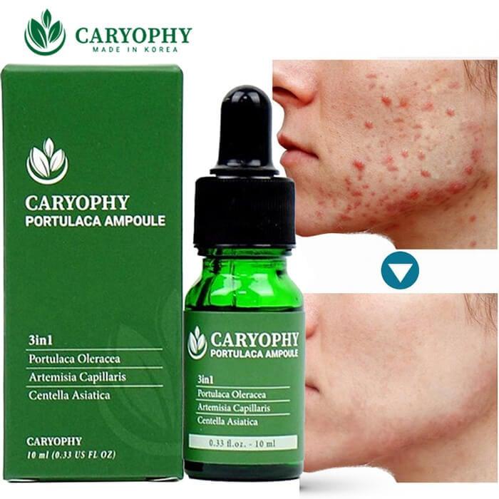 Serum trị mụn và thâm Caryophy hỗ trợ giảm mụn hiệu quả