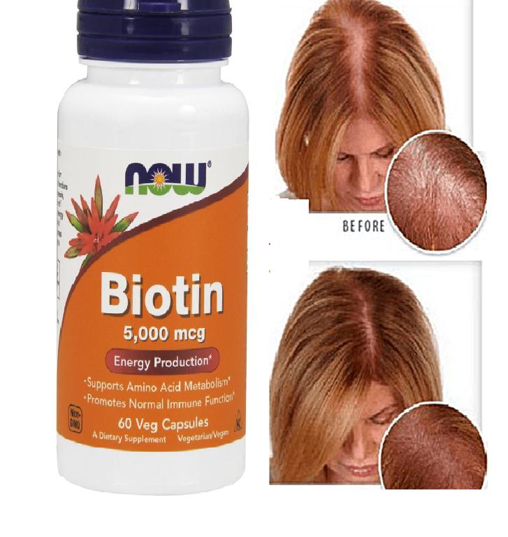 Viên uống hỗ trợ mọc tóc NOW Foods Biotin cho tóc chắc khỏe